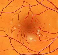 Background Diabetic Retinopathy